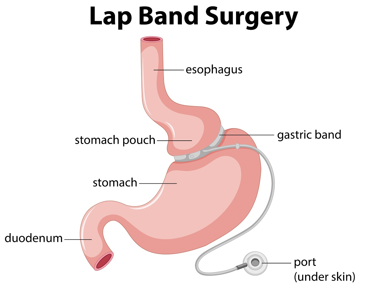 What to Expect After Lap-Band Surgery