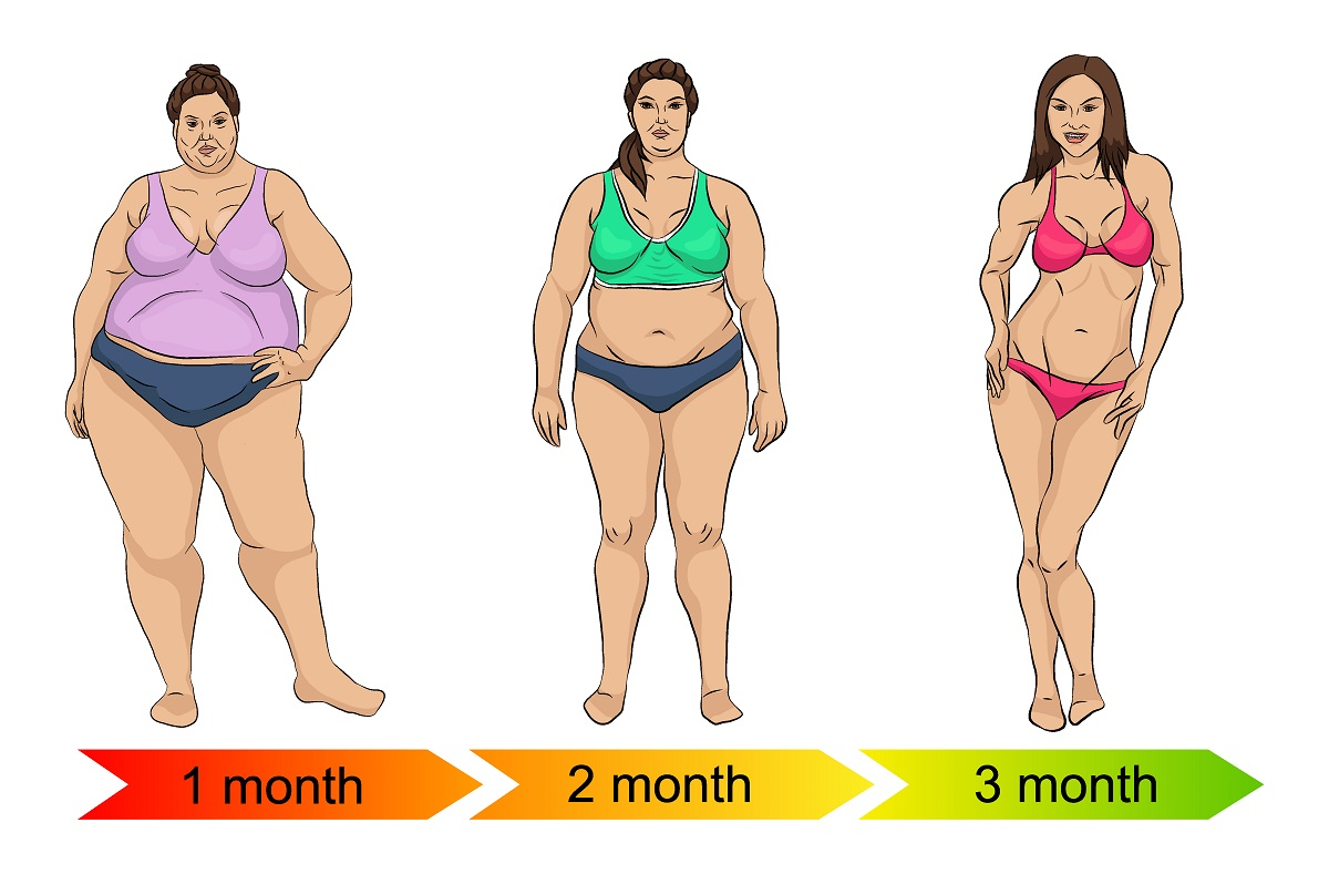 What's the Cost of Weight Loss Surgery