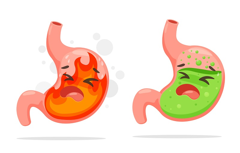Acid Reflux After Gastric Sleeve Surgery